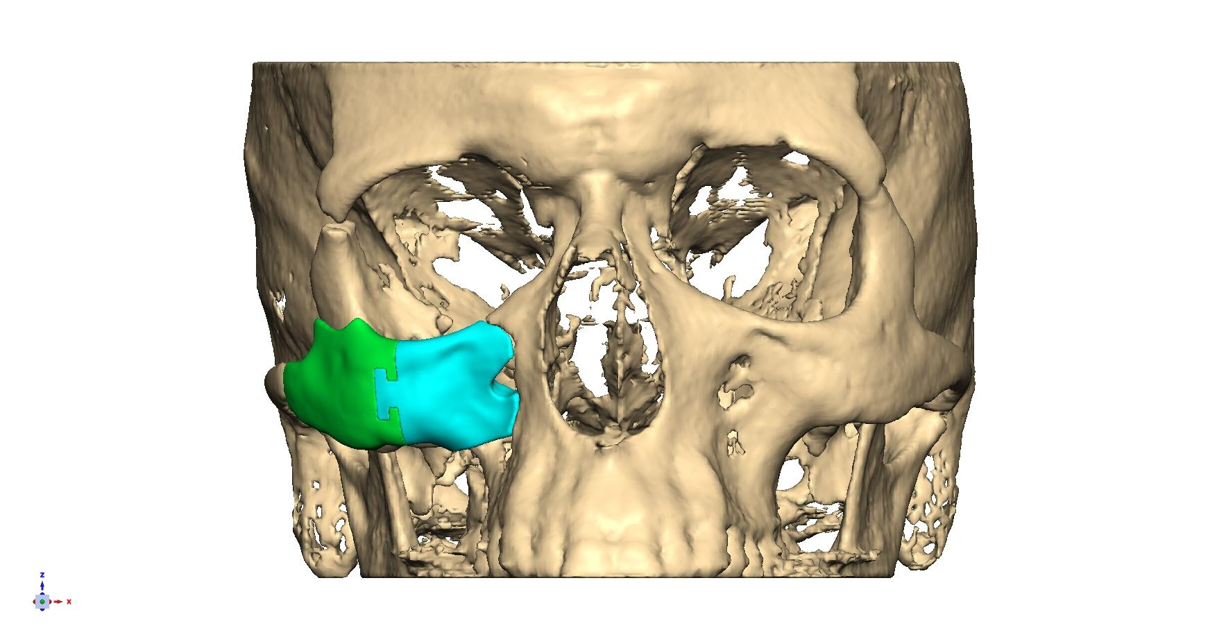 A 3D skull showing implant reconstruction of the right cheek (zygoma).
